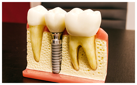 When to visit a Periodontist for Dental Implants | Austin, TX