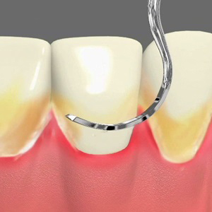 Periodontal Care in Austin